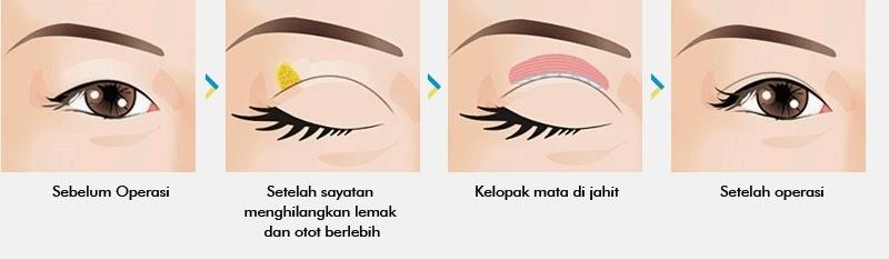 Metode operasi kelopak mata ganda dengan sayatan di bedah plastik Wonjin