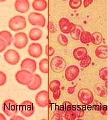 penyembuhan thalasemia secara tradisional