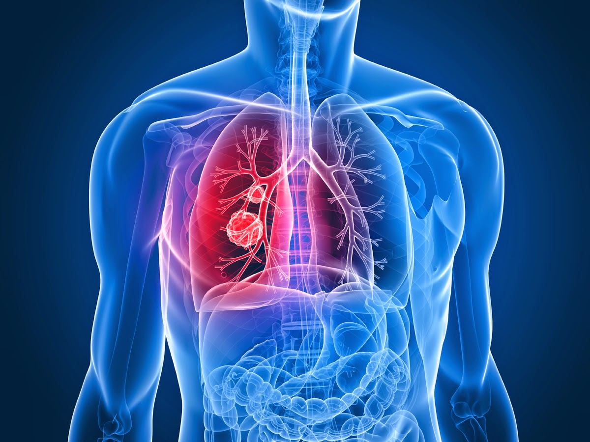 Radiology and Lung Cancer Detection