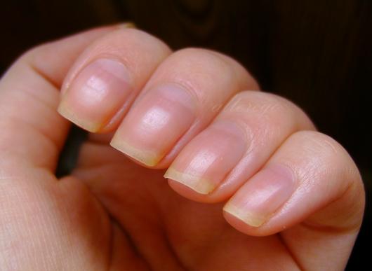 O akcji reanimacyjnej paznokci (post dla wytrwałych ;) )