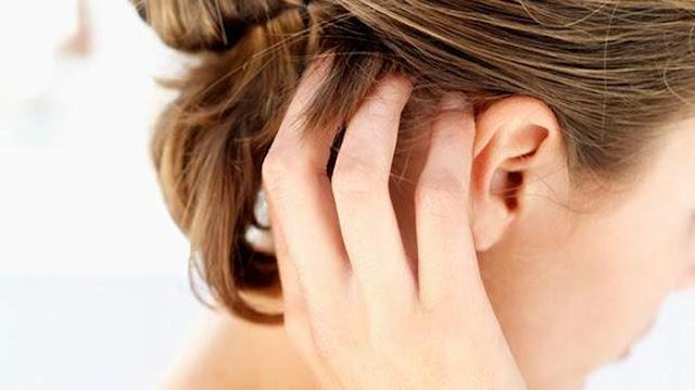 Obat Aman Untuk Psoriasis Pada Kulit Kepala