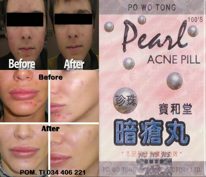 Body Stretch Mark Cream Penghilang Selulit