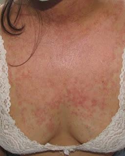 Lupus secundario