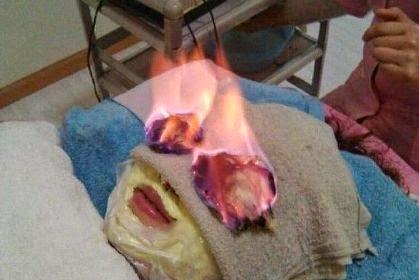 Metode Kecantikan Unik! Bakar Wajah Dengan Api