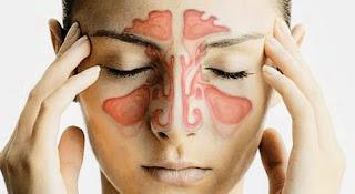 những biến chứng của bệnh viêm xoang mãn tính