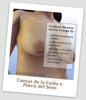 cuales son las causas de la caida de los senos o ptosis busto. Salutaris Guadalajara MExico