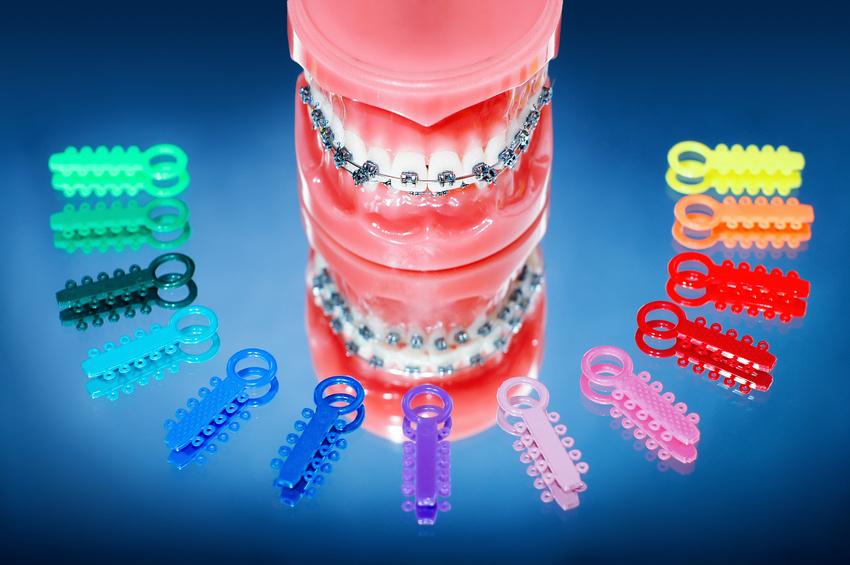Dsb dental clinic smile youve got options traditional straightwire braces metal brackets solutioingenieria Choice Image