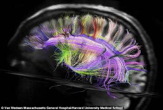 المخ كما لم تراه من قبل
