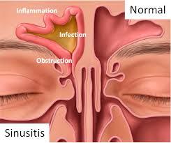 Cara Mengobati Penyakit Sinusitis Telah Terbukti Ampuh