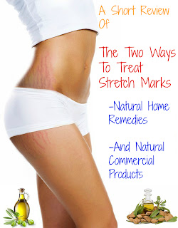 girl with stretch marks