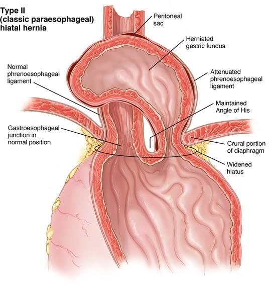 lung hernia repair