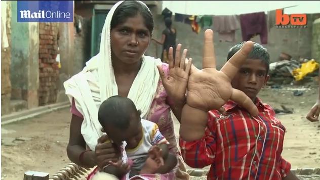 Kanak-Kanak Tapak Tangan Terbesar Di Dunia