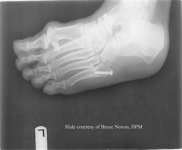 Fifth Metatarsal Fracture Symptoms-1.bp.blogspot.com
