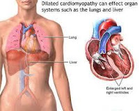 signs and symptoms of dilated cardiomyopathy