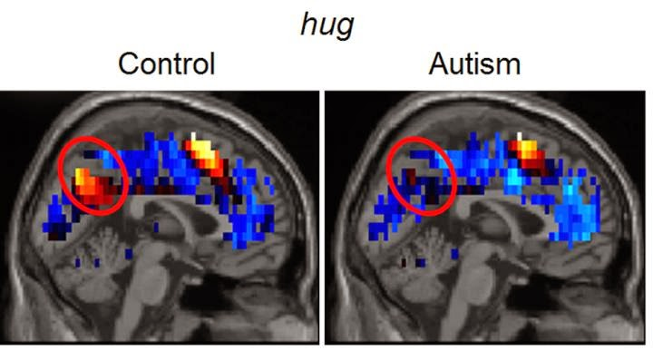 Carnegie Mellon University researchers have created brain-reading techniques to use neural representations of social thoughts to predict autism diagnoses with 97 percent accuracy. This establishes the first biologically based diagnostic tool that measures a person's thoughts to detect the disorder that affects many children and adults worldwide.