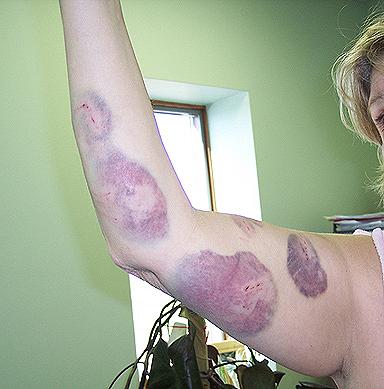 skin problem eczema