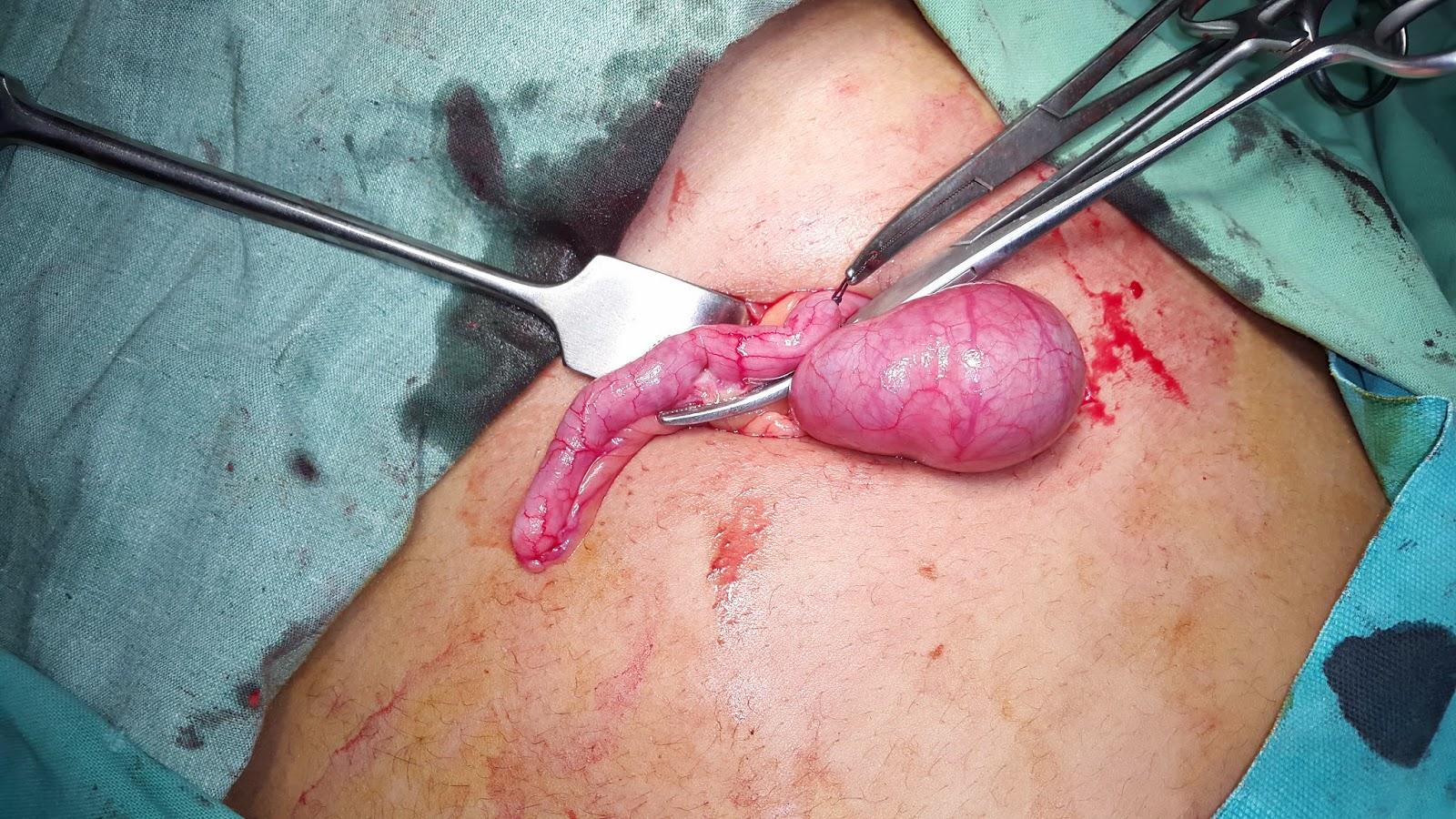 Acute Appendicitis Pic 4