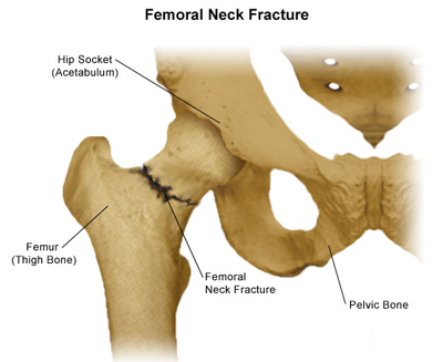 Hemiarthroplasty for fractured hip ~ Fly High Quest