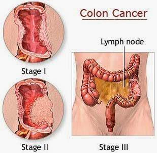 Ung thư đại tràng - Tài liệ Ngoại khoa - Bác sĩ đa khoa