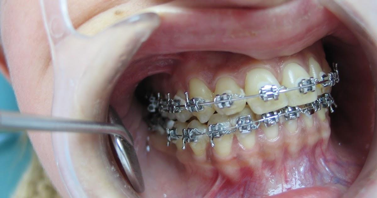 M nica bardi qu le dijo el aparato de ortodoncia a la boca for W de porter ortodoncia