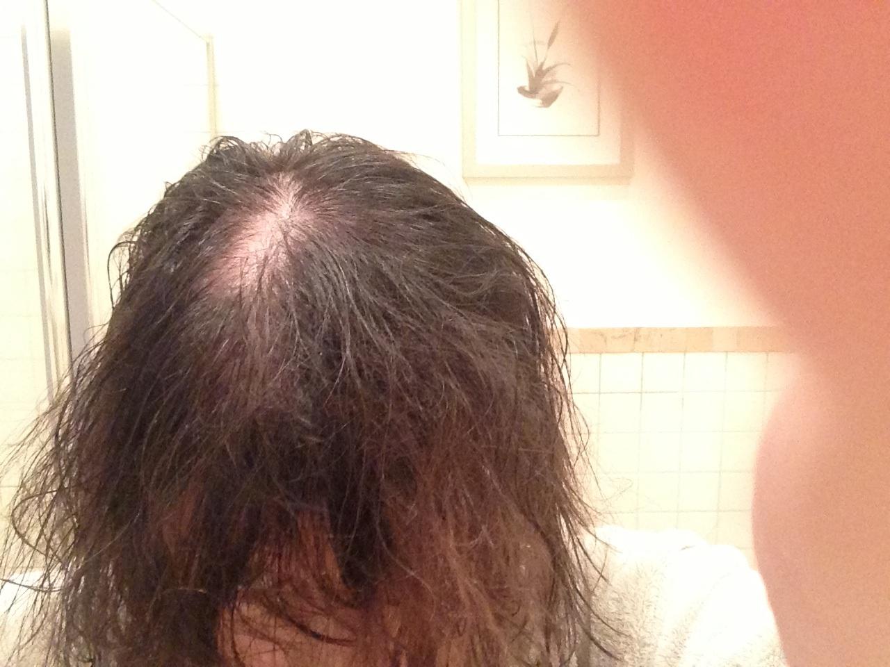 Thin Hair Crown Haircuts | thinning at the crown short ...