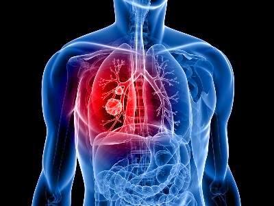 Solusi Pengobatan Penyakit Kanker Paru-Paru Secara Alami