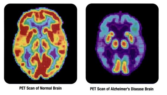Alzheimers Disease Brain vs Normal Brain