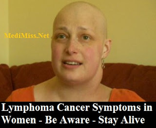 Lymphoma Cancer Symptoms in Women - Be Aware - Stay Alive