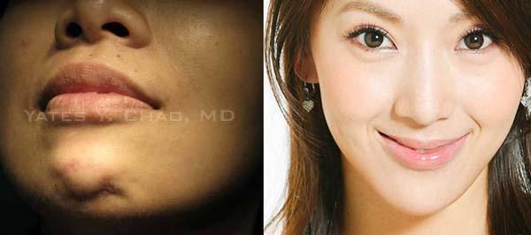 v臉, V下巴, 尖下巴, 玻尿酸, 微晶瓷, 隋唐, 小臉