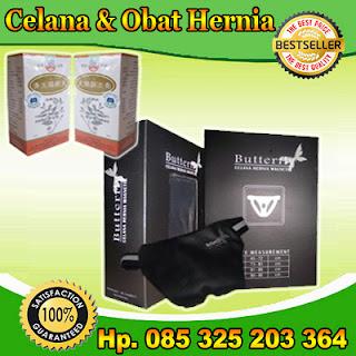 hernia,penyakit hernia,operasi hernia,askep,obat hernia,hernia inguinalis