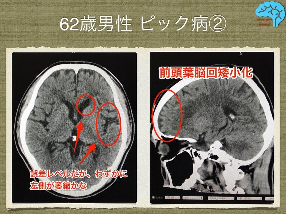 初期ピック病のCT画像。前頭葉脳回矮小化に注目。