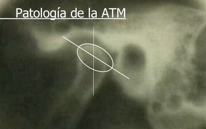 Semiología y patología del atm