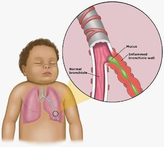 Bronchiolitis : Penyakit Saluran Pernafasan Yang Meradang Di Paru-paru