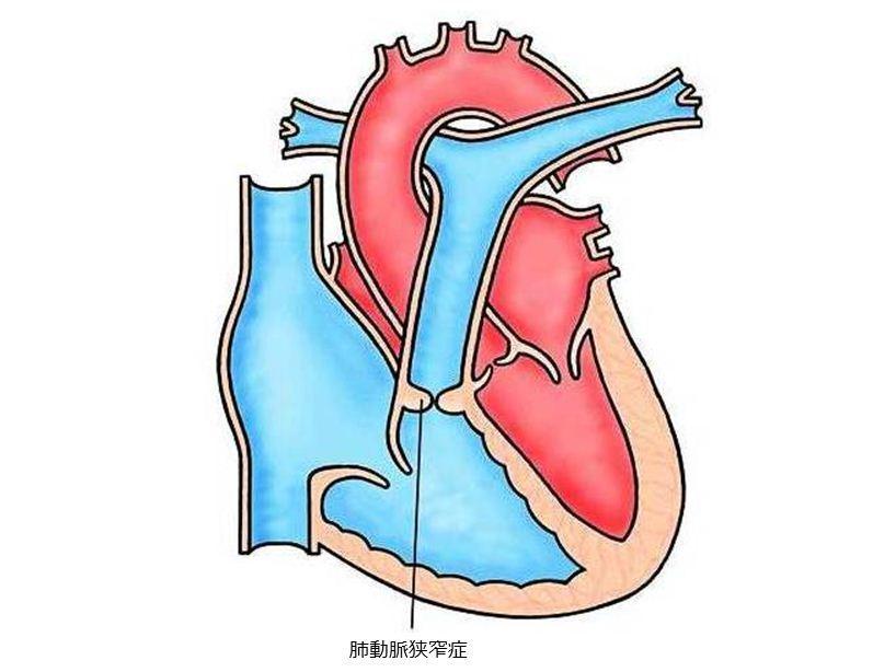 心臓がバクバク、ドキドキ鼓動が早い。疑われる病 …
