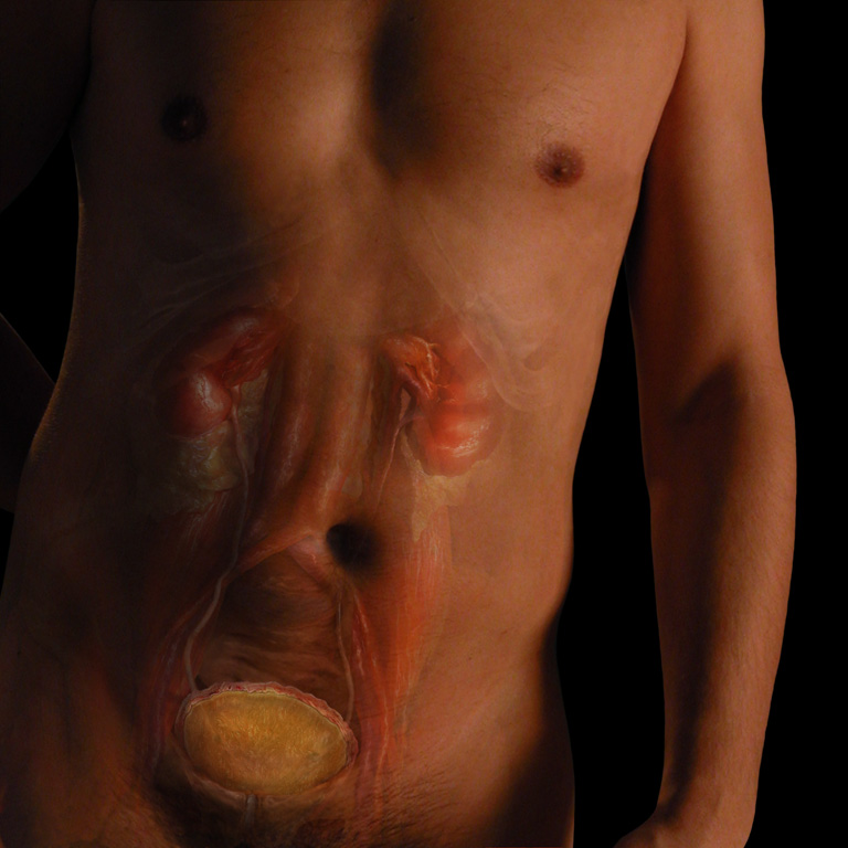 uric acid high levels reduce of high uric acid xpress treat gouty arthritis