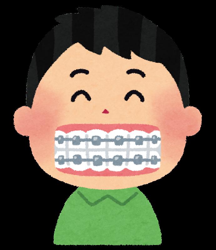 「歯 矯正 画像 フリー」の画像検索結果