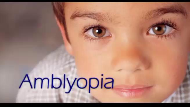 Obat Herbal Amblyopia