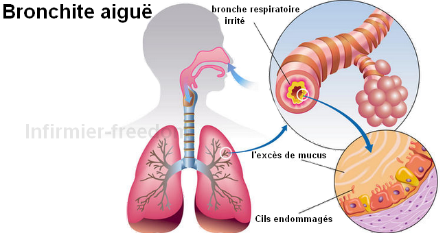 Bronchite aiguë ~ Santé et les soins infirmiers