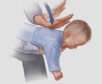 Manovre di disistruzione pediatriche Roma