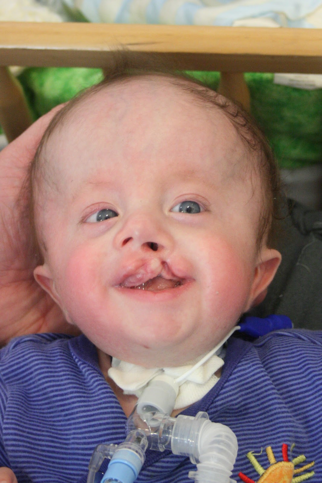 trisomy 18 Edwards' syndrome, also known as trisomy 18, is a serious genetic condition caused by an additional copy of chromosome 18 in some or all of the cells in.