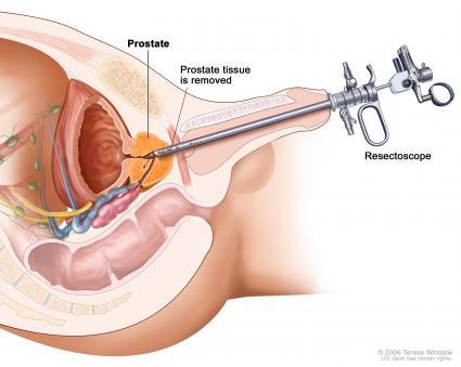 abcesul prostatic cauze simtpome tratament