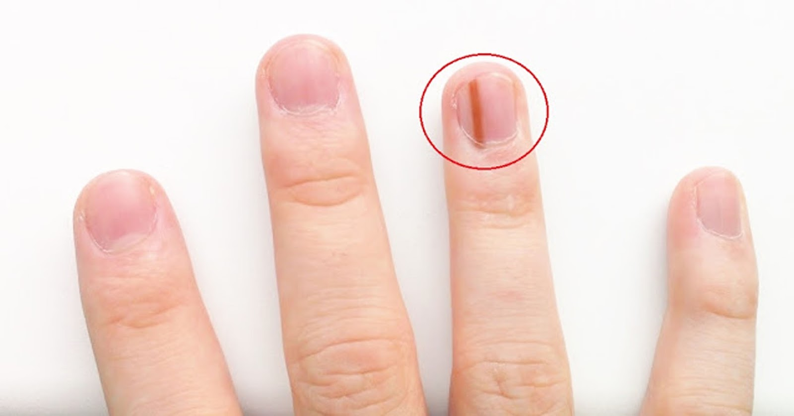 Pay attention ! IF YOU FIND IN THE SIGNS BLACK NAILS THE SIGN CANCER ...