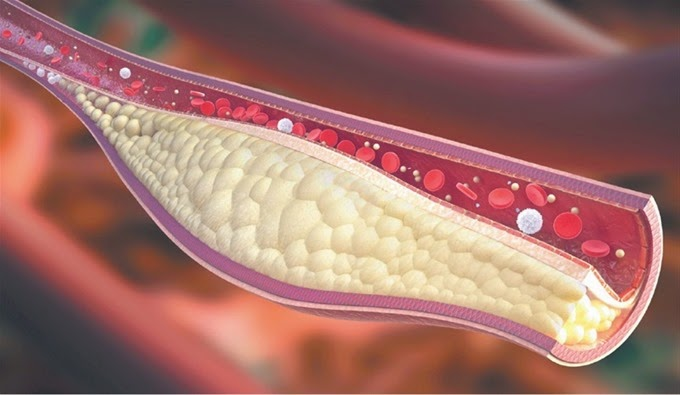 Cara Mengobati Hiperlipidemia