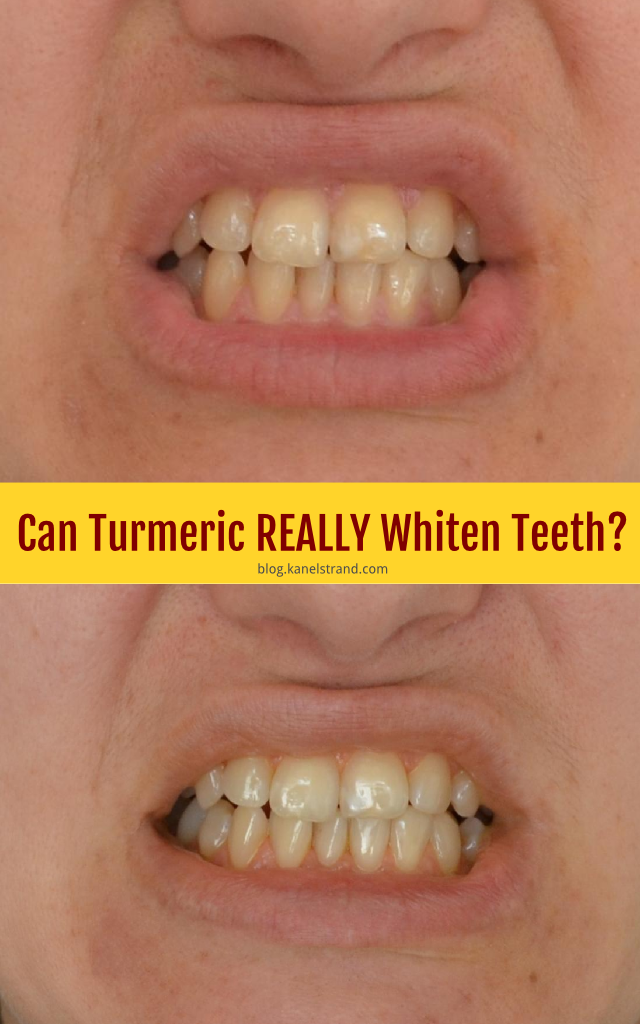 Can Turmeric Really Whiten Teeth?