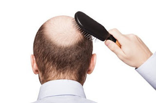 Є кілька способів зміцнити корінці волосся.