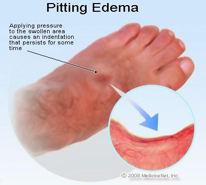 PITTING EDEMA ADALAH