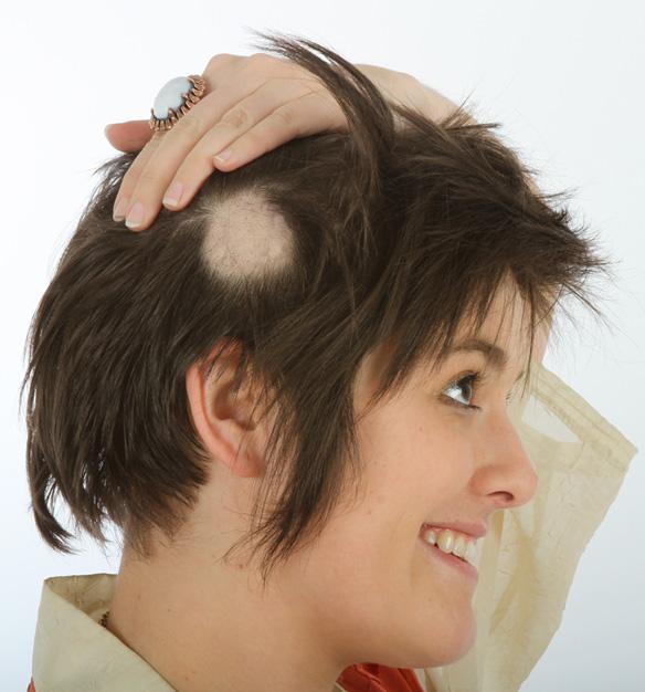 Hair Loss Remedy Accutane