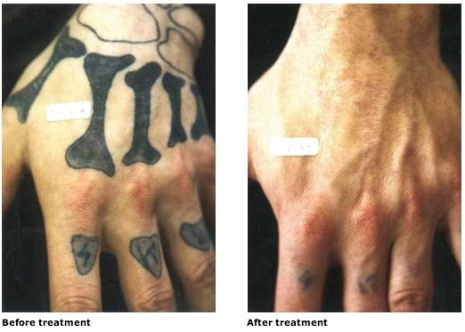 Erase Tattoo Removal Great Before And After Tattoo Removal Results