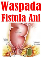 http://saysoeshson.blogspot.co.id/2015/12/pengobatan-fistula-ani-secara-alami.html