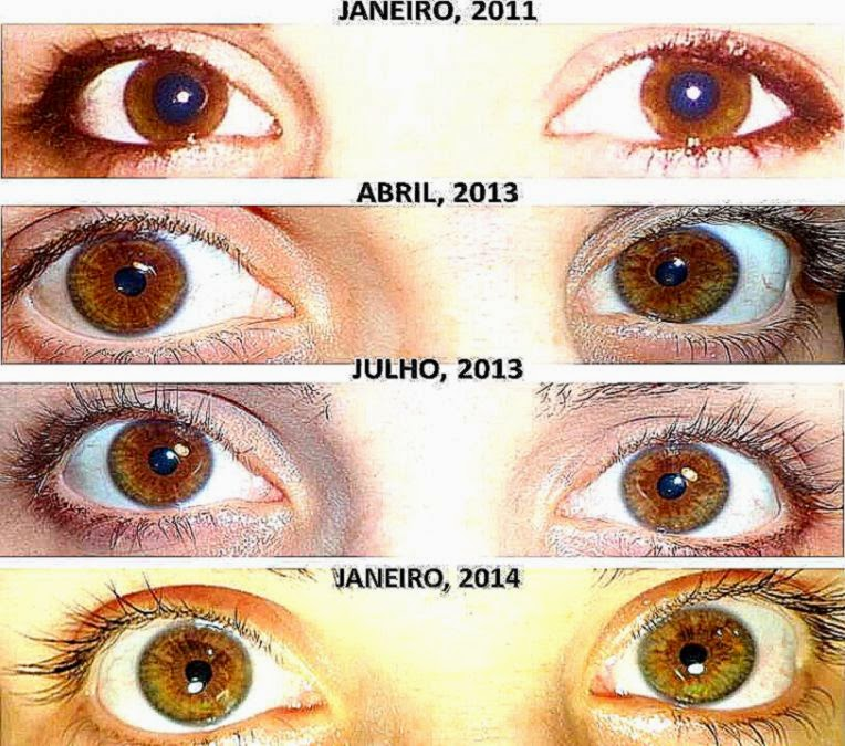 adults changes in Eye colour